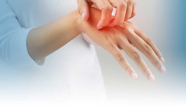Bệnh viêm da cơ – Nguyên nhân, triệu chứng và các phương pháp điều trị tự nhiên