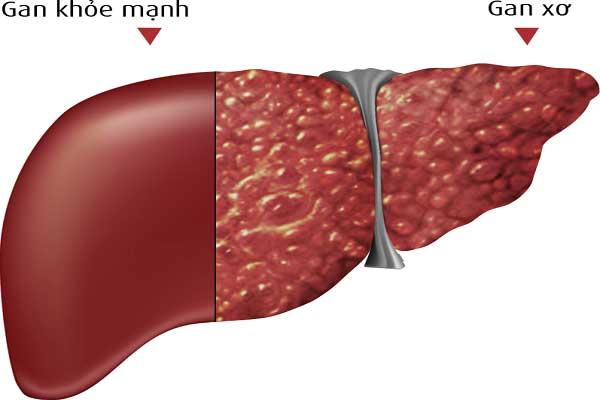Bệnh xơ gan và các phương pháp điều trị tại nhà